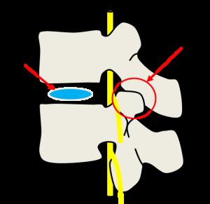 脊椎のイラスト