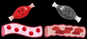 筋肉と血管のイラスト