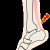 放置はダメ!運動後の足の痛みの原因と対処法を6つの部位別に解説!