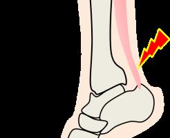 足の痛みー2