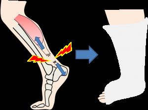 足の痛みー3