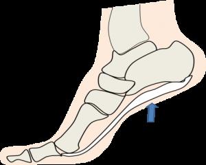 足の裏ー2