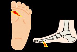 足の痛みー4