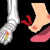 【要注意】足の親指のしびれが長引く3大原因と危険な病気7つ!